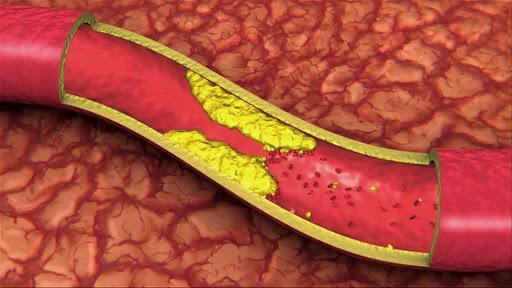 colesterol - Receitas da tia Livro